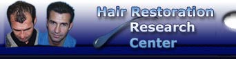 Hair Transplants need to be researched, find the information here